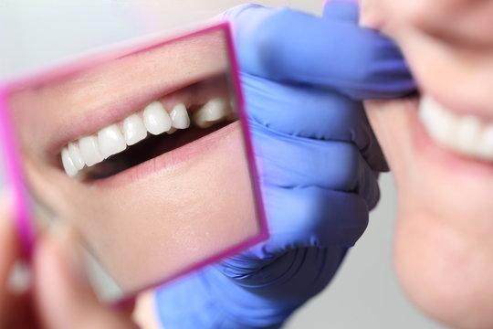 Patientin mit Zahnlücke im Spiegel beim Zahnarzt