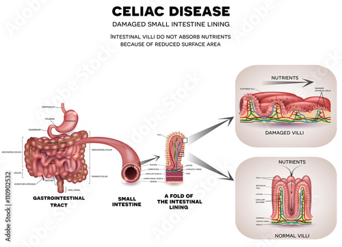 gastrointestinal tract anatomy and celiac disease affected small intestine  villi  unhealthy villi with damaged cells and healthy villi