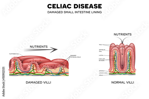 celiac disease affected small intestine villi unhealthy villi with celiac disease villi damage celiac disease affected small intestine villi unhealthy villi with damaged cells and healthy villi intestinal villi do not absorb nutrients because of