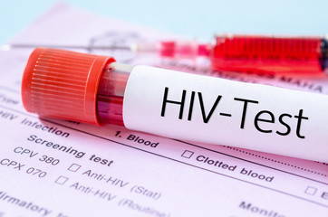 HIV test label on HIV infection screening test form.
