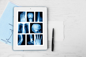 X-rays on the tablet screen on wooden table