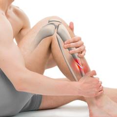 Oblique Fracture of the Tibia - Leg Fracture 3D illustration