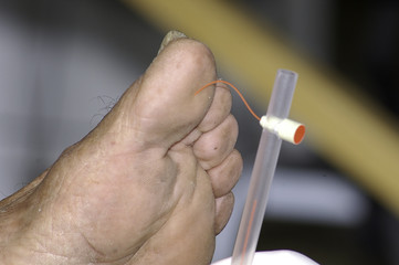Patient has his foot examined by a health professional. This person does Monofilament test to check your sensitivity