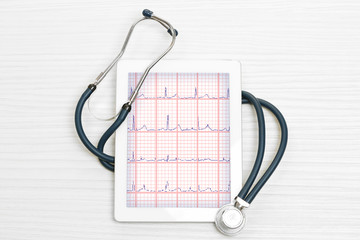Cardiogram on the tablet screen with stethoscope on wooden background