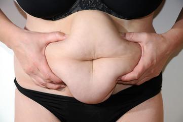 Probleme mit dem Bauchumfang