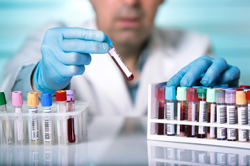 hands of a technician holding blood tube sample in the lab / doctor holds a blood sample tube in his hand testing in the laboratory