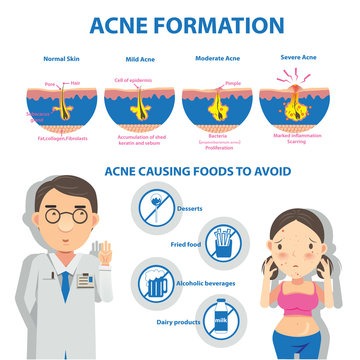 Acne/ Acne formation Info Graphic and diagrams.Vector illustrations