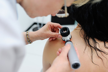 melanoma diagnosis. the doctor examines the patient's mole