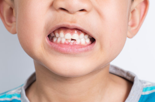 Young Asian boy showing two missing frontal teeth after dental e