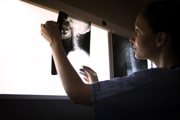 Side view of woman examining neck x-ray on diagnostic medical tool