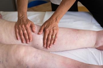 Terapista che esegue il massaggio linfodrenante  manuale su gambe con problemi di edema linfatico