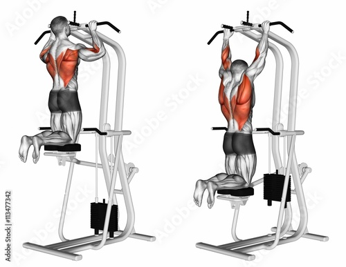 machine assisted pull ups