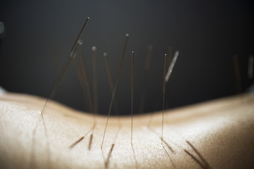 Close up of acupuncture needles on back against black background