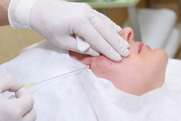 Procedure of face lifting surgery.