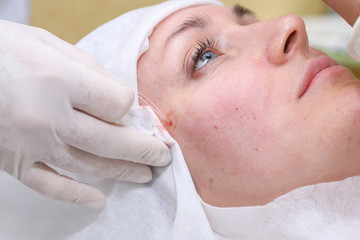 Procedure of face lifting surgery.