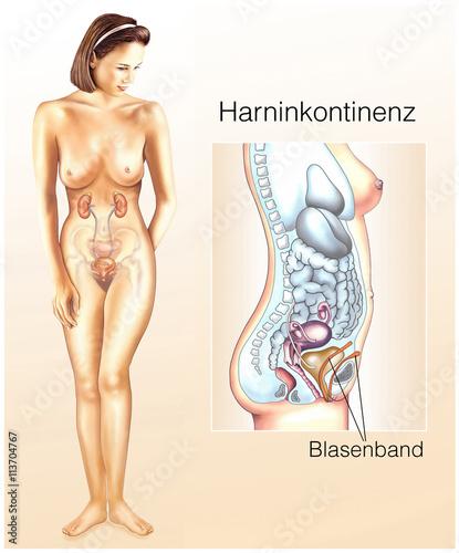"harninkontinenz.blasenschwäche.blasenband"" stock photo and royalty"