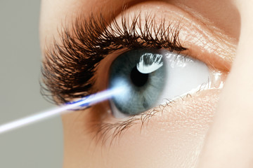 Laser vision correction. Woman's eye. Human eye
