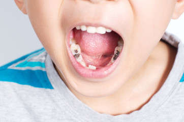 Young boy with mouth wide opened showing several tooth filling