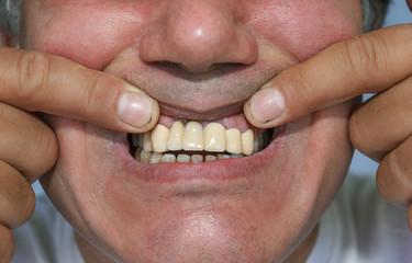 man showing false front upper teeth