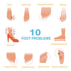 Foot Problems/Vector of Common Foot Problems