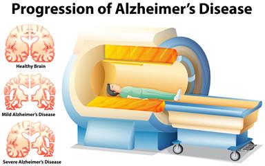 Progression of Alzheimer's Disease