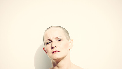 Hairless woman