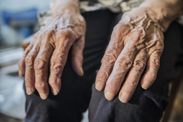 wrinkled hands of an elderly woman on her knees