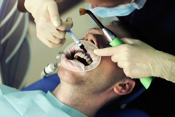 The dentist whiten your teeth client