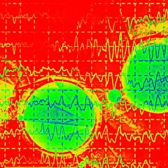 brain wave on electroencephalogram EEG for epilepsy, illustration