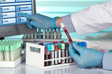 laboratory technician holding blood tube and touching screen / hands of a lab technician holding blood tube sample and and touching screen computer in the table