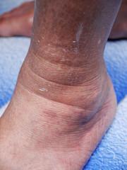 Detail of ill senior female swollen leg
