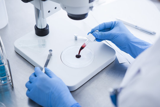Researchers are analyzing the blood under a microscope