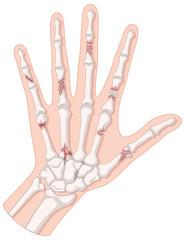 Broken bones in human hand