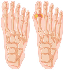 Diagram of gout in human toe