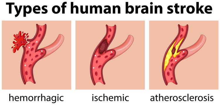 Types of human brain stroke