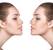 Woman before and after cosmetic nose surgery