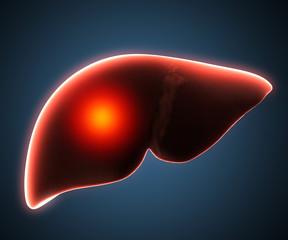 liver disease human anatomy