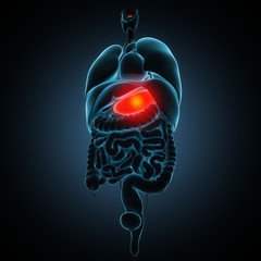 Disease illustration of human stomach