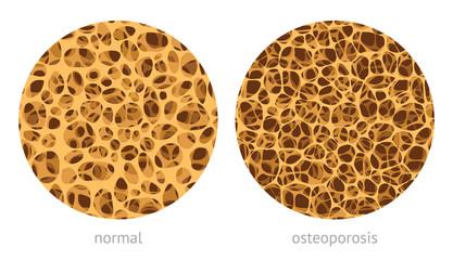 Bone spongy structure