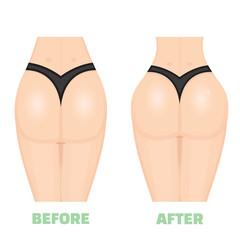 Buttocks, breech, butt, rear, nates icon or logo