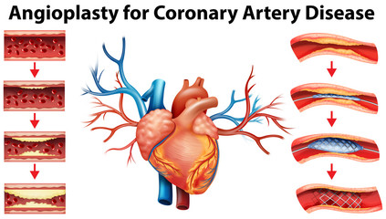 Diagram showing angioplasty for coronary artery disease