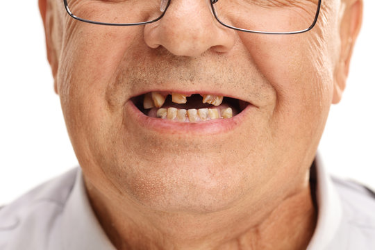 Mouth of a senior with broken teeth