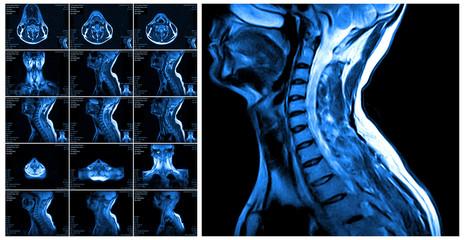 Magnetic resonance imaging of the cervical spine.