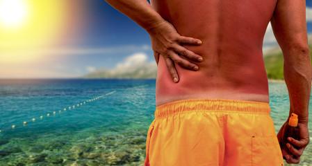 Man with sunburned skin