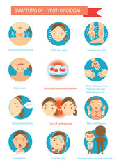 Hypothyroidism/Symptoms of the disease Hypothyroidism  illustrations in the circle.Cartoon Vector