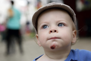 Toddler with a wound on his chin