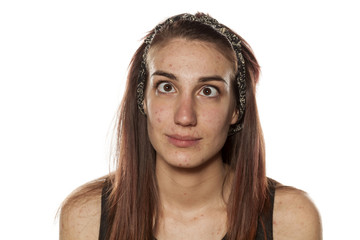 young girl with pimples and crossed eyes