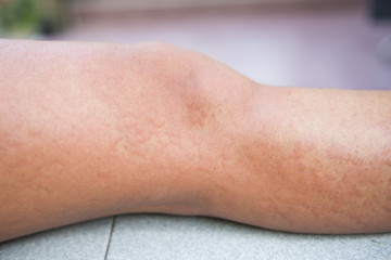 Allergic reactions caused by urticaria