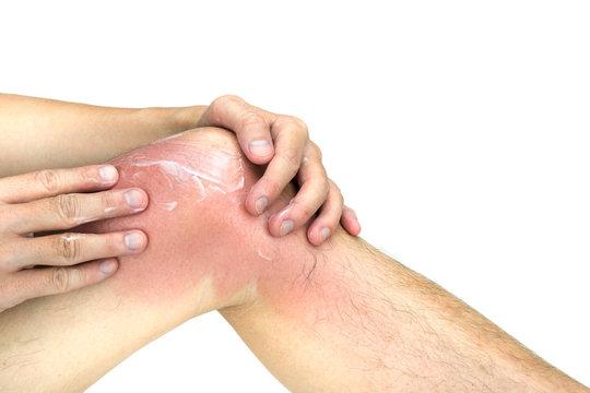 Man apply lotion on sunburnt knee skin, isolated on white background