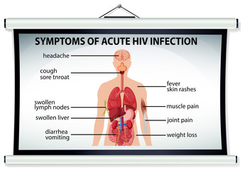 Chart showing symptoms of acute HIV infection